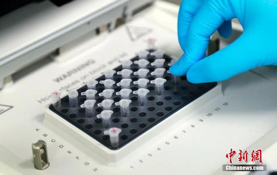 新冠疫苗临床试验志愿者:一切安好,就是长胖了